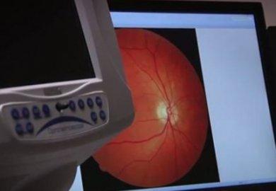 Diagnosi Alzheimer 20 anni prima  dei sintomi osservando l'occhio